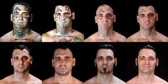 Quitar tatuaje con laser para olvidar un oscuro pasado 1