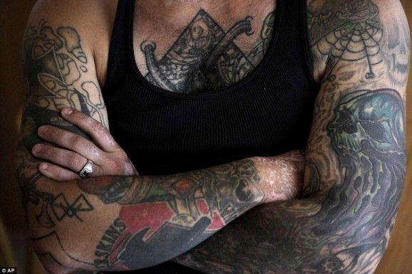 Quitar-tatuaje-con-laser-04