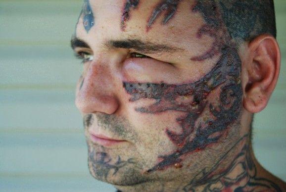 Bryon Widner war 16 Jahre lang überzeugter Rechtsextremist. Rassistische Tätowierungen im Gesicht, am Hals und auf den Händen erinnerten den heutigen Familienvater auch nach seinem Ausstieg an sein damaliges Ich. Um von diesen Tattoos und von der rechten Szene endgültig erlöst zu werden, lieà Bryon 25 Laserbehandlungen über sich ergehen. Die preisgekrönte Dokumentation gewährt Einblicke in die amerikanische Neonazi-Szene und zeigt Bryons äuÃere und innere Verwandlung.