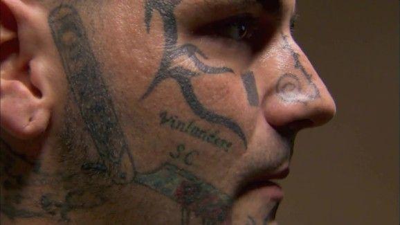 Quitar-tatuaje-con-laser-09