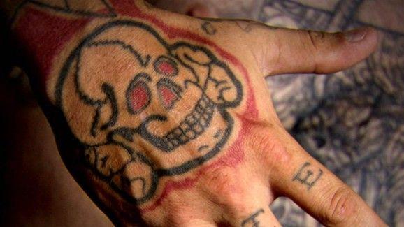 Quitar-tatuaje-con-laser-12