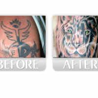Todo sobre la eliminación de tatuajes